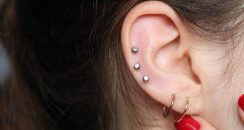 cheloidi alle orecchie
